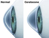 Lentes de contato para ceratocone